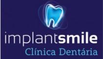 implantsmile-clinica-dentaria
